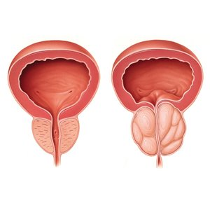 Hypertrophie de la Prostate2